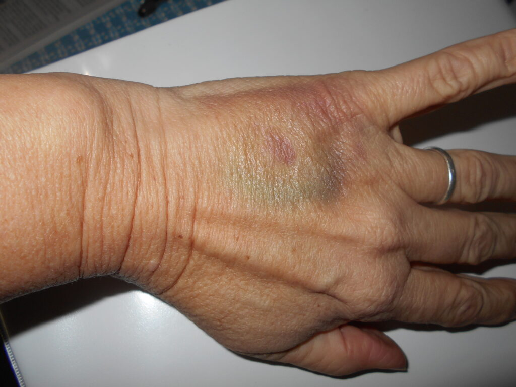 Photo of a left hand, with a large bruise on the back of the hand.